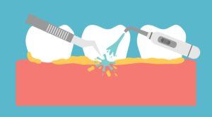 PCD Pharma Franchise for Dental Range